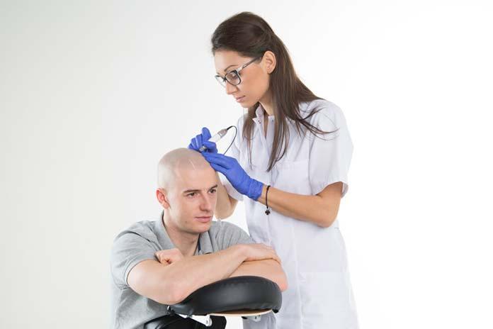 Innowacyjny i bezpieczny sposób na łysienie