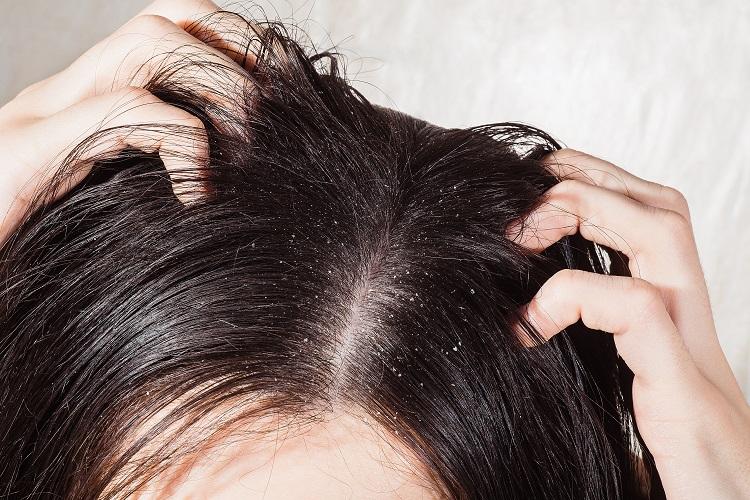Jak poradzić sobie z łupieżem? Skuteczne domowe sposoby i kosmetyki przeciwłupieżowe